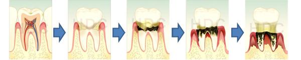 歯周病で歯が無くなるということ